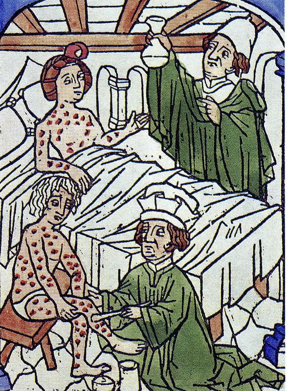 Как лечили венерические заболевания в древности